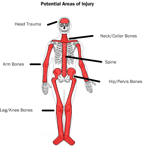 Diagram S1.  Potential areas of injury.  The design of the vehicle and the nature of the racing/driving environment largely determine the risk for different types of injuries.
